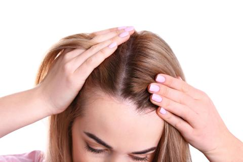 Drugs That Cause Hair Loss in Women Too
